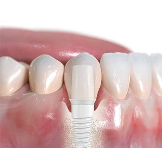 Smile with zirconia dental implant supported dental crown